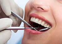 Sedation Dentist Fresno CA