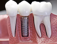 Dental Implants Fresno CA