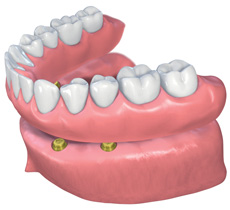 Dentures secured with dental implants