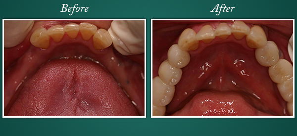 Before and After Dental Bridge