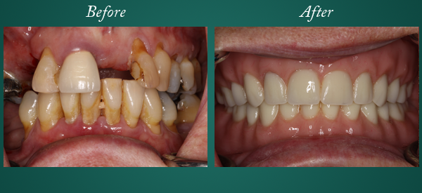 Dentures Before and After